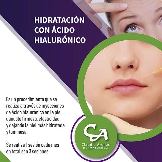Hidratación Con Ácido Hialurónico