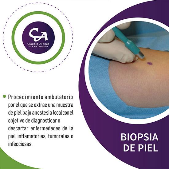 Biopsia De Piel