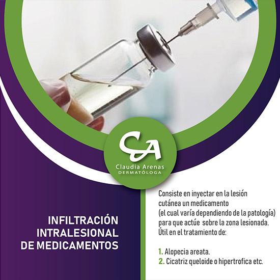Infiltracion Intralesional De Medicamentos