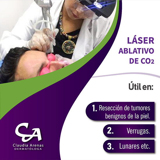 Laser Ablativo De Co2