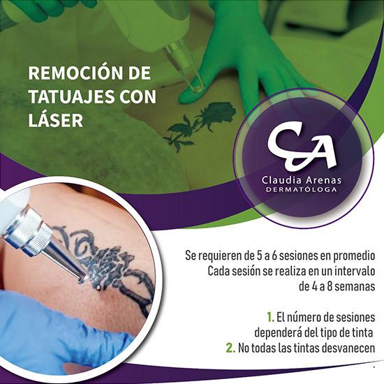 Remoción De Tatuajes Con Láser